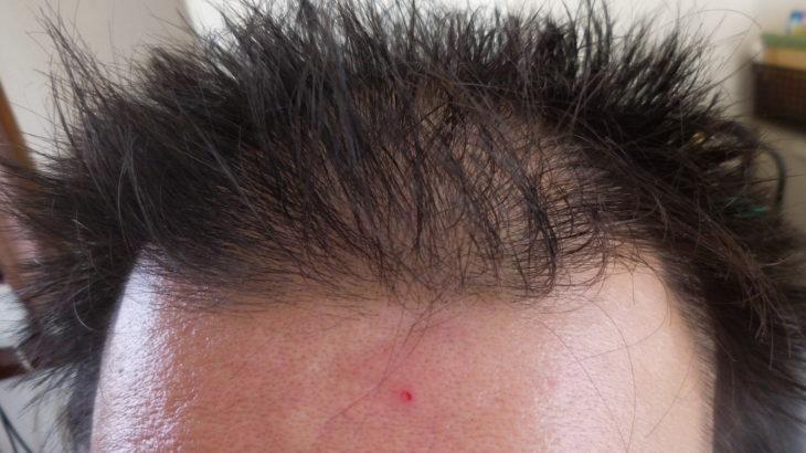 【男の実体験】頭皮汚れが原因の薄毛は徹底的なシャンプーで改善できるかもしれない!正しい二度洗いの方法!
