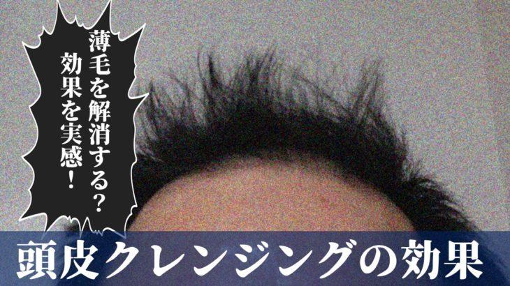 【男の実体験】椿油(大島椿)で頭皮クレンジング!髪質が激変で薄毛が目立たなくなってきた【育毛】