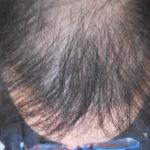 【男の実体験】薄毛は生活環境を改善するだけで解消される可能性がある!