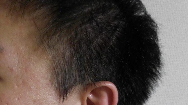 【メンズ】頭皮クレンジングで頭皮が荒れる?それはシャワーの温度に問題アリの可能性!